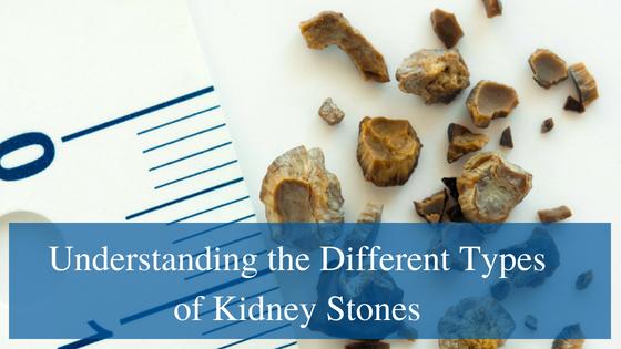 Understanding the Different Types of Kidney stones Urology Specialists